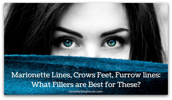What Dermal Fillers Are Best For Marionette Lines, Crows Feet & Furrows